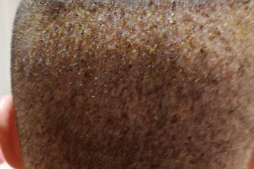 implante capilar 10 dias