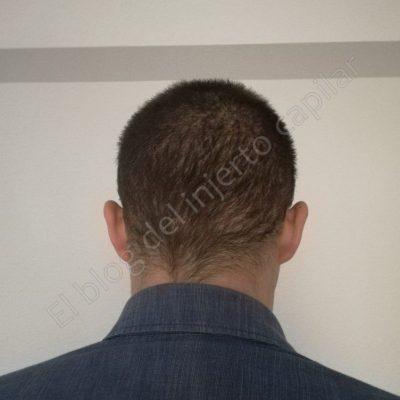 injerto de pelo 1 mes